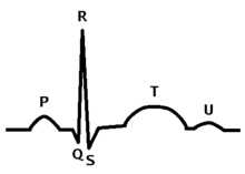 220px-Systole_QRS_Complex